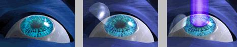 ЛАЗИК - LASIK - ЛАСИК - лазерный кератомилёз