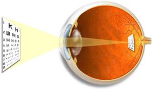 Нормальное зрение - изображение предметов формируется точно на сетчатке